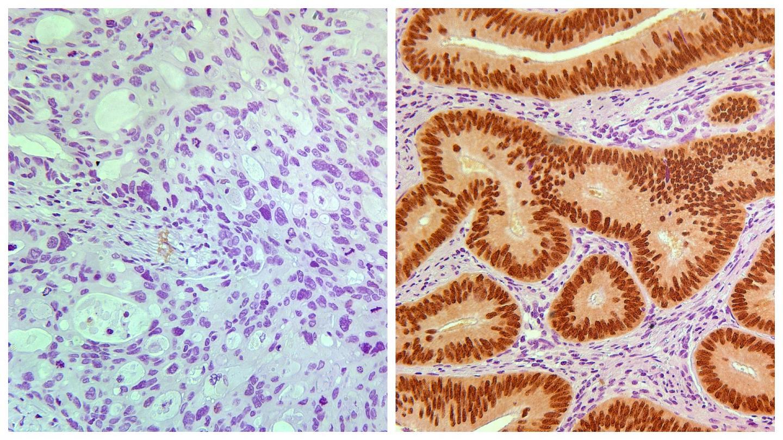 essays on colorectal cancer