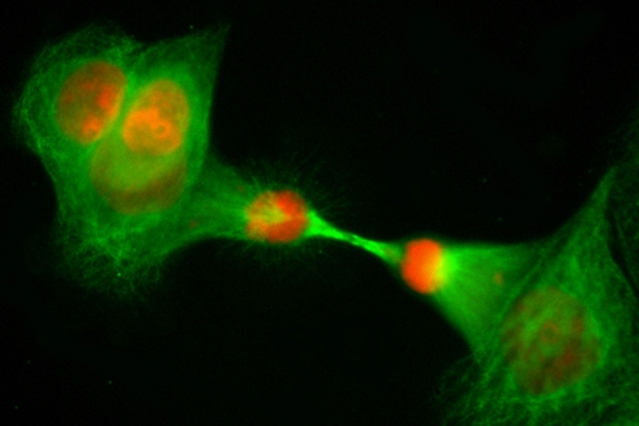 A cell division observed. Cancer risk increases with the rate of cell divisions.