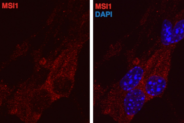 Musashi proteins, stained red, appear in the cell cytoplasm, outside the nucleus. At right, the cell nucleus is stained blue.