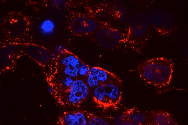 The lung-targeting nanoparticle 7C1 delivers therapeutic RNAs to cancer cells: siRNA, labeled in red, inundates mutant lung-cancer cells, the nuclei of which are shown in blue, after 7C1-mediated transfection.