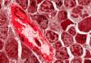 - bone marrow 100x70 - Scienmag