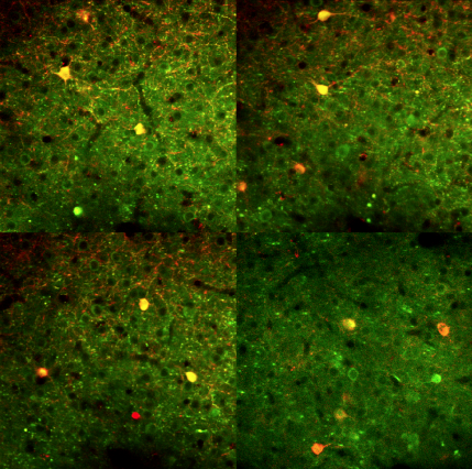 Neurons in the primary visual cortex of an awake mouse