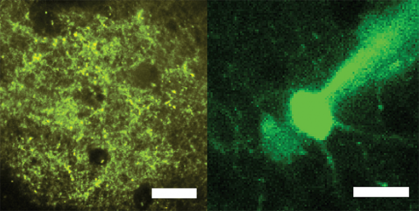 Neurons with markers that enable optical stimulation (left) and recording (right).
