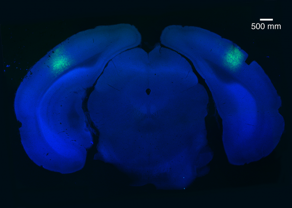 A small region of the brain called the primary visual cortex can be targeted using a virus (light green) to block habituation learning.