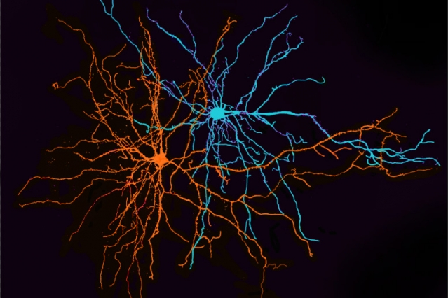Two neurons of the basolateral amygdala. MIT neuroscientists have found that these neurons play a key role in separating information about positive and negative experiences.
