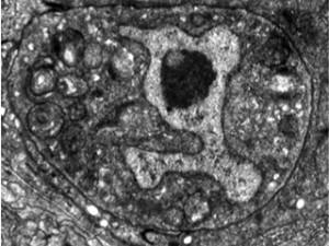 A newly discovered way for cells to die