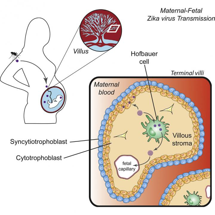 Zika virus infects human placental macrophages