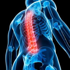 spinal-injury-300x300