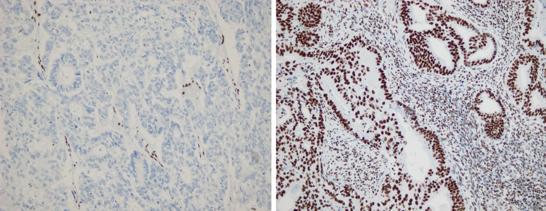 MIT researchers discovered that certain genes in endometrial cancer are inactivated in only some parts of the tumor. Tumor suppressor ARID1A is expressed in the primary tumor (left, brown staining) but not in its paired metastasis (right).