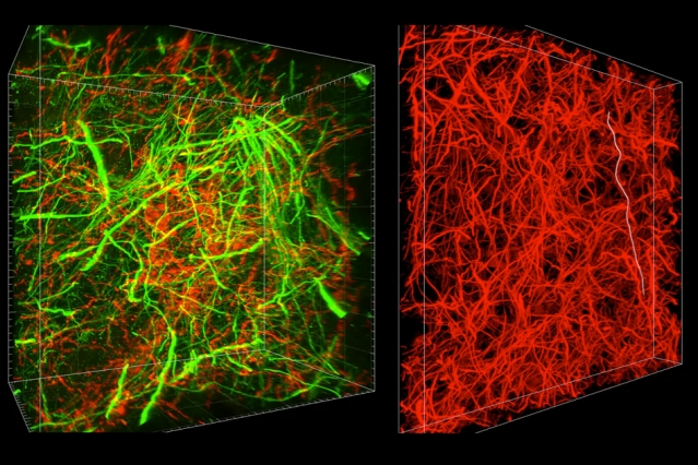 A new technique called magnified analysis of proteome (MAP), developed at MIT, allows researchers to peer at molecules within cells or take a wider view of the long-range connections between neurons.