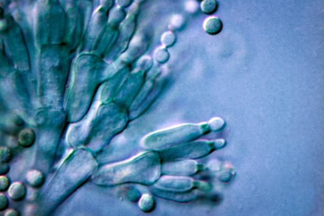 A research team led by MIT chemistry professor Mohammad Movassaghi has developed a strategy for synthesizing a group of compounds called communesins, which occur naturally in some fungi. Researchers may now be able to further investigate the compounds' cancer-fighting abilities. Pictured is an image of penicillium fungus.