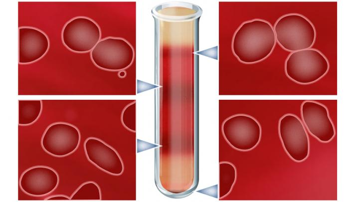 Discovery could help treatments for sickle cell disease