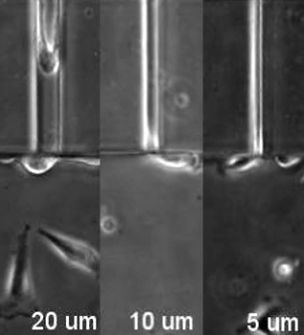This is a time-lapse microscopy movie of human breast cancer cells migrating into channels of different widths (20um, 10um and 5um). The far left panel show scells moving easily into channels that are 20um wide. The central panel shows that cells take longer to migrate into the smaller 10um size channels. The far right panel shows cells are unable to migrate into 5um wide panels and protrude their cytoplasm into the channel, but the nuclei remain outside the channel. This indicates that the size and deformability of the cell nuclei acts as a limiting factor for cells to squeeze into small spaces. Credit: Jayo et al.