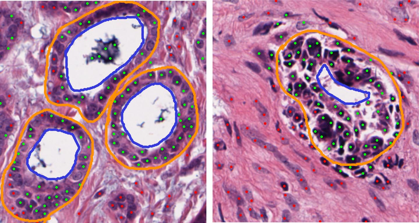 An analysis of cancer in the tissue of the body