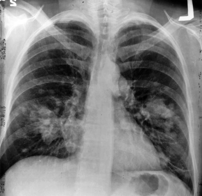 Lung Cancer Credit: Wikimedia