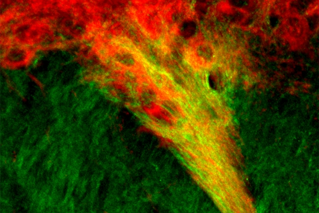 MIT neuroscientists have identified tight connections between dopamine-producing cells of the substantia nigra (red) and neurons in the striatum (green). These connections, which show up as yellow, may play a role in the brain's decision-making processes.