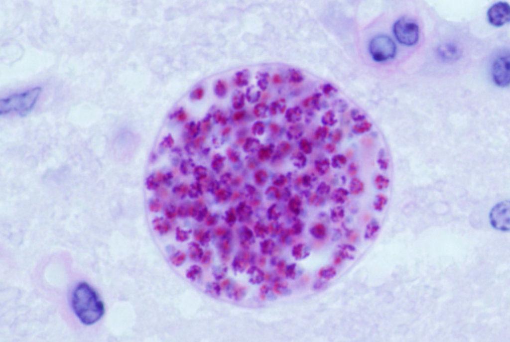 Toxoplasma gondii tissue cyst (Credit: Jitinder P. Dubey / USDA / Wikimedia)