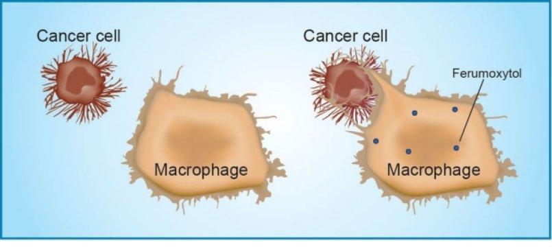 A mouse study found that ferumoxytol prompts immune cells called tumor-associated macrophages to destroy tumor cells. Credit: Amy Thomas