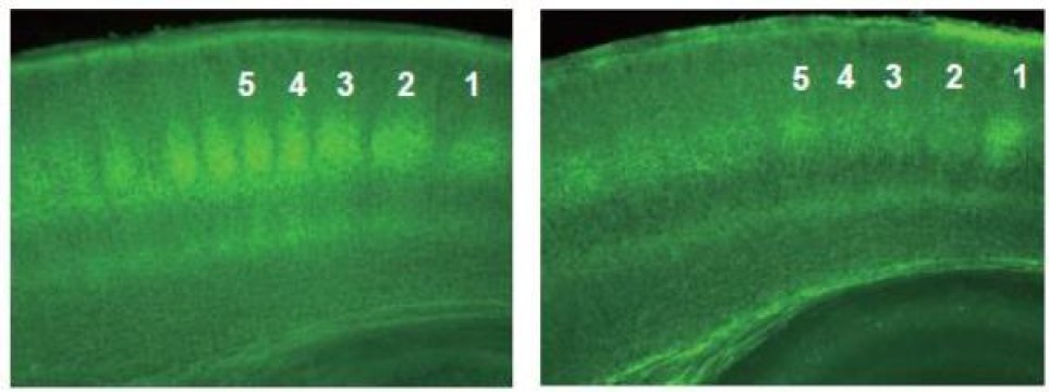 Suppression of thalamocortical projection by chronic administration of ?9-THC (cannabinoid, active ingredient of marijuana). Photomicrograph of cerebral cortex from transgenic mice expressing GFP in thalamocortical axons at postnatal day 7 (P7). (left) : Normal thalamocortical projections. In the middle layer (layer 4), blobs of GFP showing dense termination of thalamocortical axons can be seen (under number 1~5). (right): Thalamocortical projection at P7 from a mouse received chronic administration of ?9-THC (P2~7). Massive retraction of thalamocortical projections including middle layer (layer 4) can be observed. Credit: Osaka University