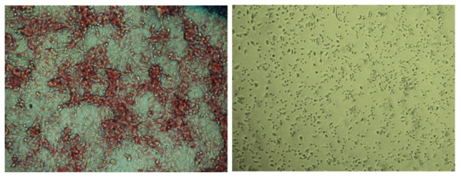 Salk Institute researchers and collaborators develop novel cancer treatment that halts fat synthesis in cells. Placebo-treated cells (left) have far more lipid (red) production compared to ND-646 treated cells (right). Credit: Image courtesy of Salk Institute