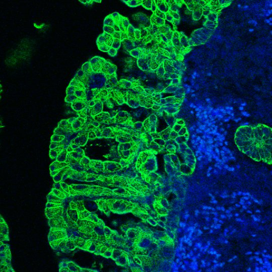 Foamy epithelial cells of the uterus aggregate lipids via a receptor and support pregnancy in bitches. The receptor equally attracts bacteria, which may cause an infection (green/middle: foamy cells). Credit: Cordula Gabriel