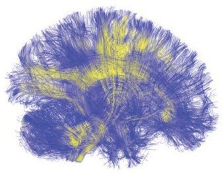 A visualization of the brain, reconstructed from MRI scans, shows tracts of white matter connecting different regions of the brain to one another. A new study that uses computational modeling to investigate brain stimulation finds that stimulating network hubs - areas of the brain that are strongly connected to other parts via white matter - results in the global activation of many brain regions. Credit: Jean Vettel, Army Research Laboratory/PLOS Computational Biology