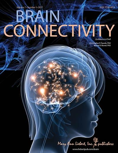 IMAGE  - 132738 web 1 - How does brain functional connectivity change from the awake to unconscious state?