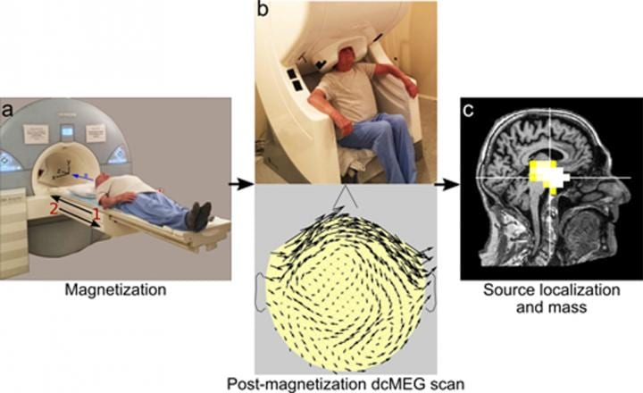 Advanced imaging technology measures magnetite levels in the living