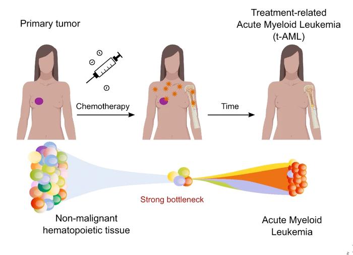 Treatment related Acute Myeloid Leukimia